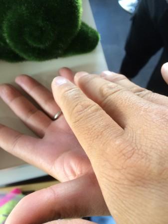 移し身アロマ療法ー鼻炎治療IMG_7369.JPG