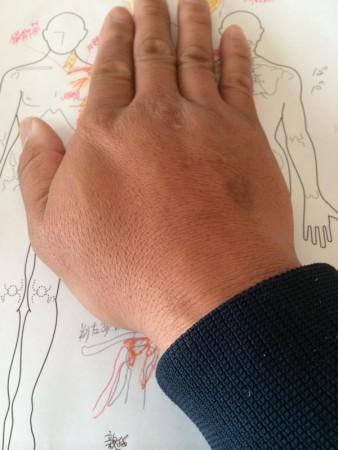 古代療法_移し身療法と古代アロマ療法で病院では治らない四十肩と五十肩の改善_4