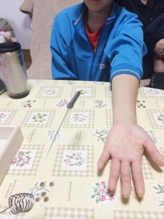 ドテラ-doterra-アロマの活用事例-インフルエンザ予防に効果バツグン_3