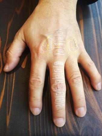 古代療法とは-古代療法で交通事故による頚椎損傷の改善例 1