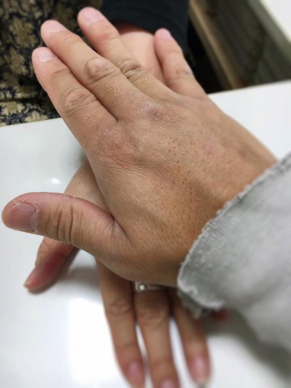 6金銀の癒やし-古代療法で腰痛の解消_松山市内-ジョープラ_