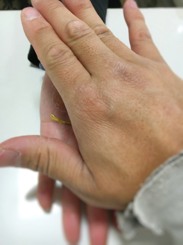 7金銀の癒やし-古代療法で腰痛の解消_松山市内-ジョープラ_
